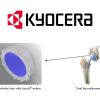 "KYOCERA's Artificial Hip Joint Technology ""Aquala"" received Japan's ""Prize of the Minister of Economy, Trade and Industry"""