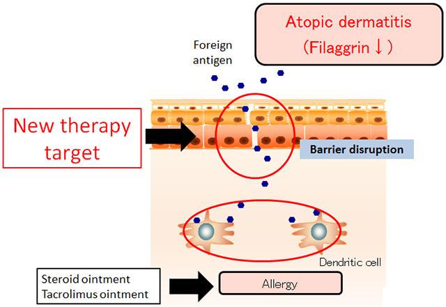 Mechanism of Eczema