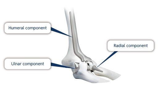 Nakashima Medical Co., Ltd. - Elbow Joint Prosthesis