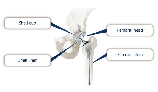 Nakashima Medical Co., Ltd. - Hip Joint Prosthesis