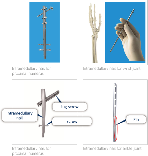 Nakashima Medical Co., Ltd. - Trauma Devices: Intramedullary Nails