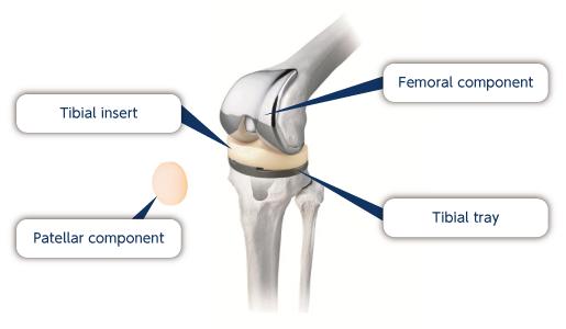 Nakashima Medical Co., Ltd. - Knee Joint Prosthesis