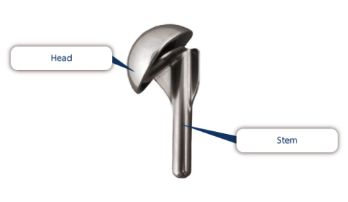 shoulder rplacement prothesis manufacturer Faulty replacement implants from wright and tornier  us have shoulder arthroplasty or shoulder replacement surgery each year  manufacturers of shoulder.
