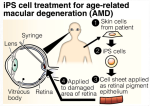 iPS cell treatment for age-related macular degeneration (AMD)