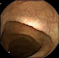 Image of colon shot by MiniMermaid